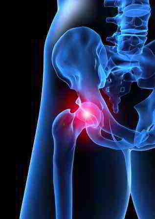 Anterior Hip Pain