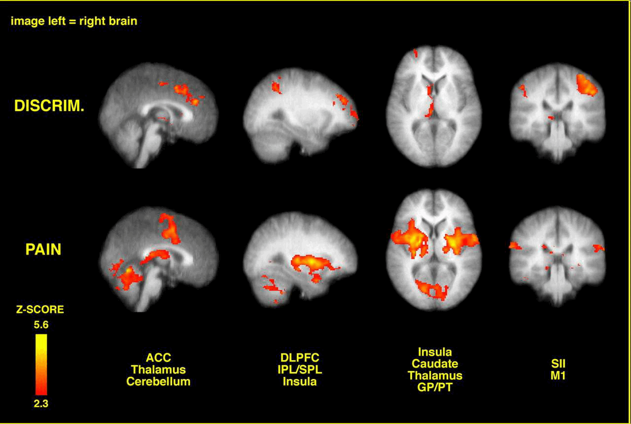 Brain imaging of spatial discrmination versus perceived pain